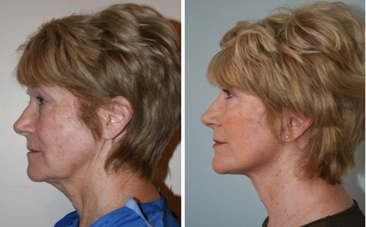 how much does a neck lift cost