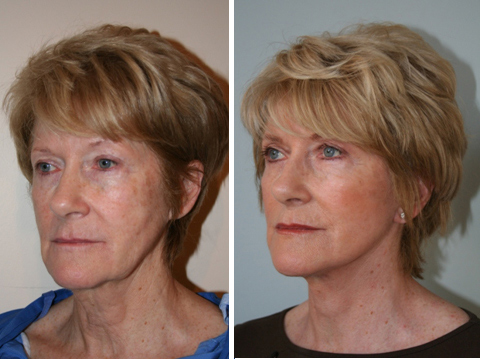 Facelift Related Keywords Amp Suggestions Facelift Long