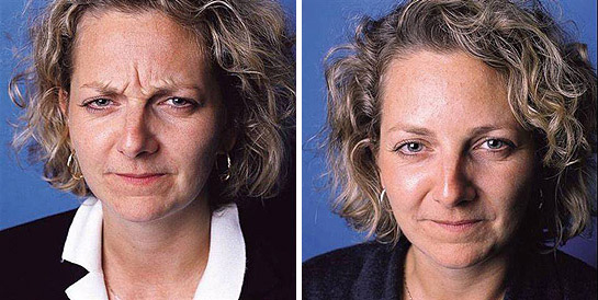 Lines and Wrinkles - London Plastic Surgeon & BAAPS council